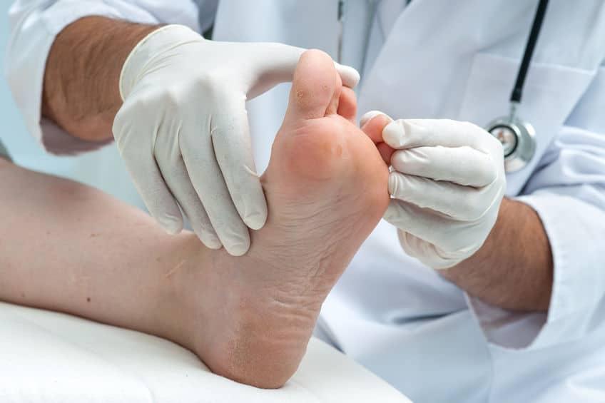 How to Treat Hammer Toe