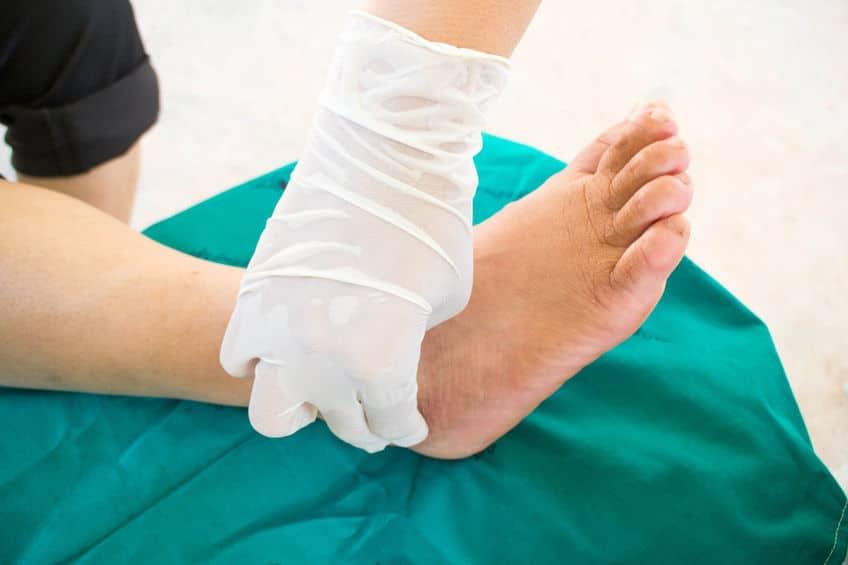 The Diagnosis of Charcot (Neuroarthropathy) Diabetic Foot